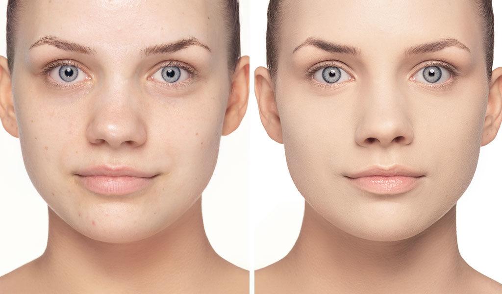 Der Vorher/Nachher Effekt des Camouflages bei Hautunreinheiten