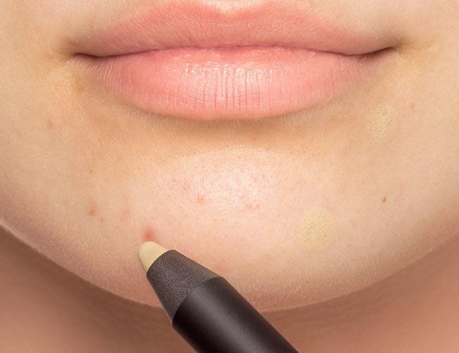 Ein grüner Abdeckstift wird auf eine Hautunreinheit am Kinn aufgetragen