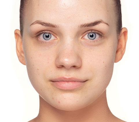 Vorher/Nachher Effekt des Schminktipps Unreine Haut